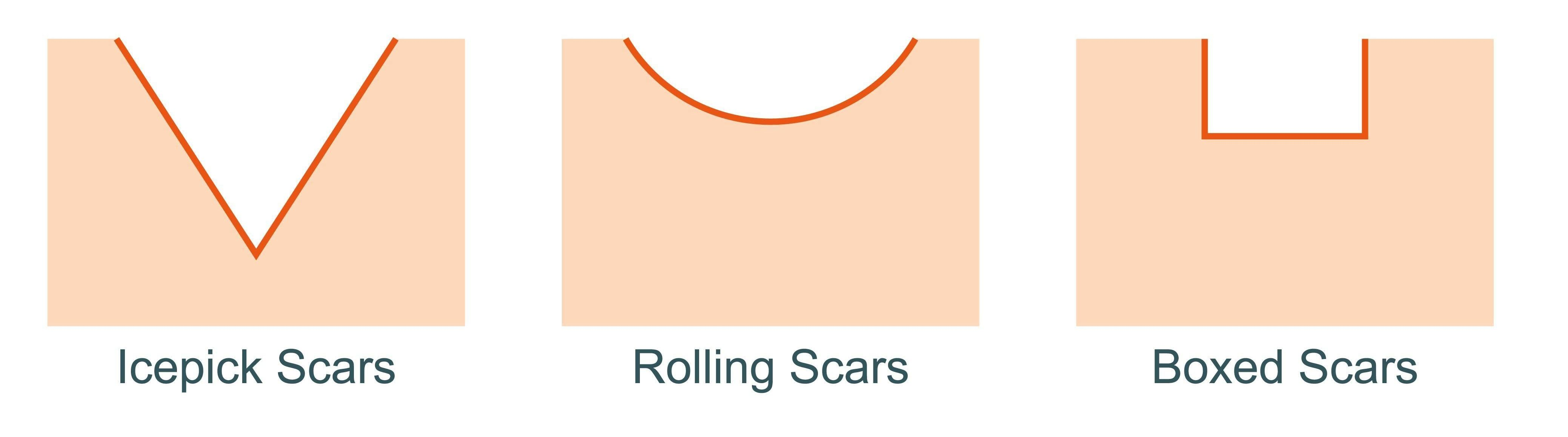 Icepick, rolling, boxed acne scars and Keloid Scars