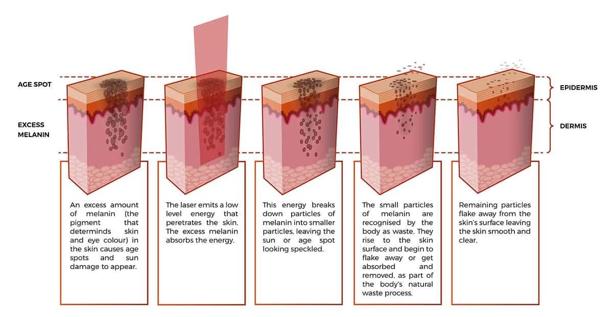 Melasma treatment Singapore