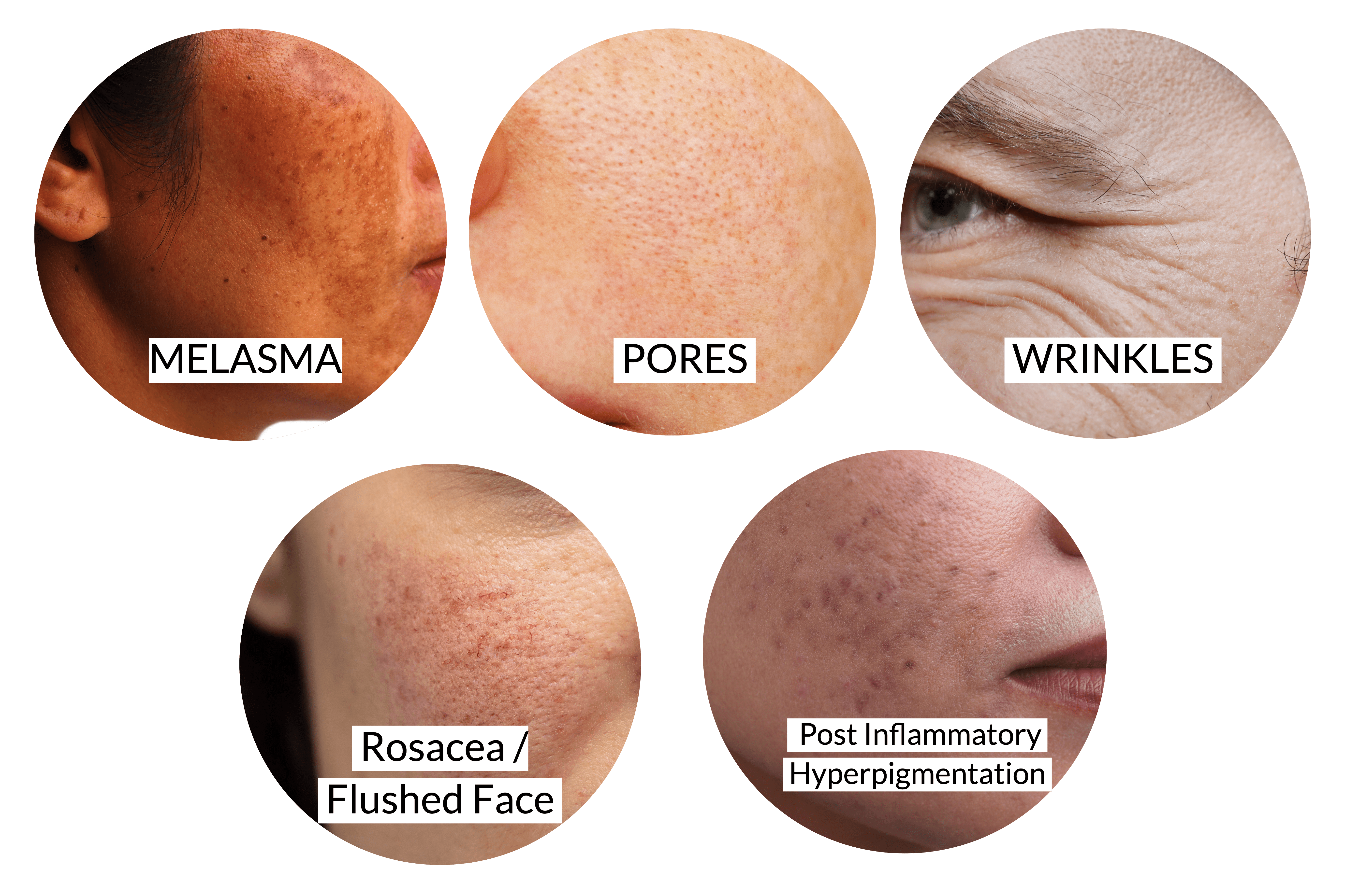Pulsed radiofrequency as a treatment for melasma   Ensoul Medical Clinic